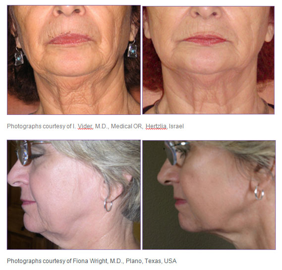 3DEEP Facial Tightening - Before And After