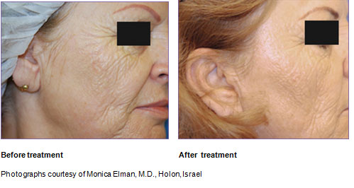 rf-fractional-resurfacing
